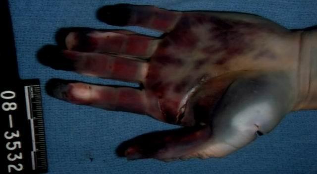 autopsy travis alexander Jodi arias