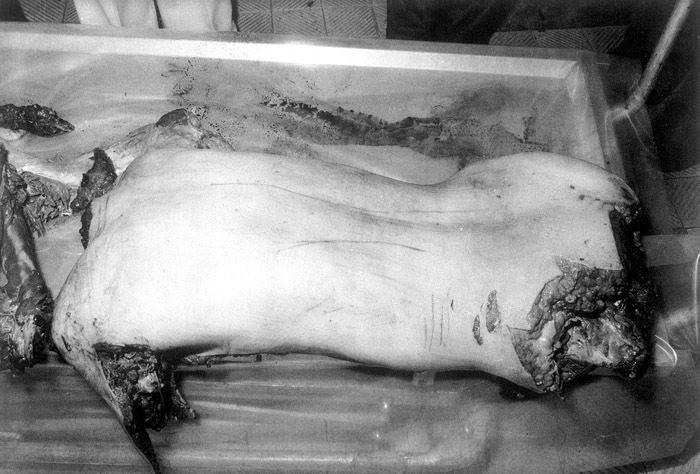 http://murderpedia.org/male.S/images/sagawa_issei/sag_010.jpg